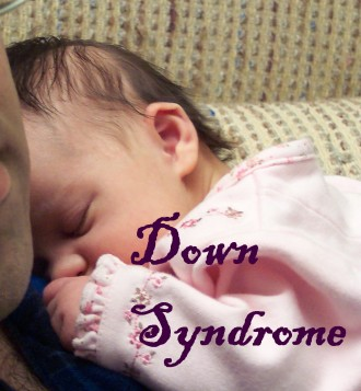 Blog Down Syndrome